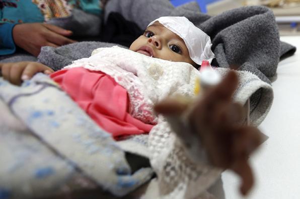Uma criança iemenita suspeita de estar infectada com cólera recebe tratamento no Hospital Sabaeen em Sanaa. Seis semanas após o segundo surto da doença mortal em menos de um ano, pelo menos um paciente chega em Sabaeen a cada 60 segundos. Foto: AFP PHOTO / Mohammed HUWAIS -
