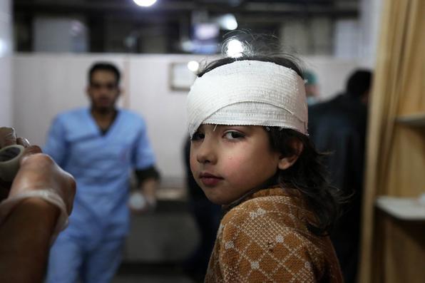 Menina síria  recebe tratamento em  hospital  após bombardeios do governo sírio na região sitiada de Ghouta Oriental, nos arredores da capital, Damasco. Foto: AFP PHOTO / Ammar SULEIMAN -