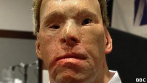 Nelson: depois de sofrer ataque no Afeganistão, ele passou a ser conselheiro do exército em pesquisas para tratamento de queimados. Foto: BBC/Reprodução