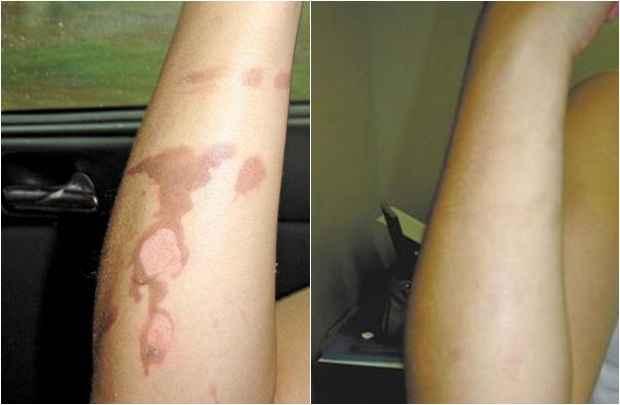 Antes e depois: perlícula regenera o tecido danificado por queimaduras, cortes, úlceras e até lesões causadas por radioterapias. Foto: Innovatec's/Divulgação