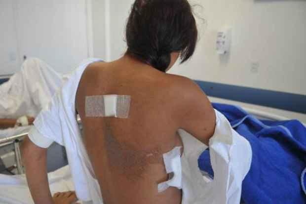 A v�tima levou um tiro nas costas e, segundo os m�dicos, por um cent�metro, n�o ficou tetrapl�gica. Ela ainda est� sem o movimento de uma das pernas. Foto: Minervino J�nior/CB/D.A Press (Minervino J�nior/CB/D.A Press)