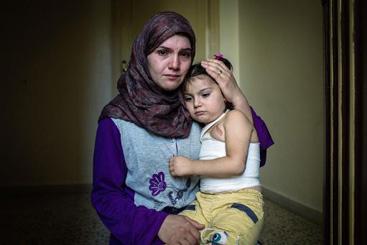Uma imagem divulgada pelo Alto Comissariado para Refugiados das Nações Unidas mostra Dayane, de 24 anos, refugiada síria no Líbano, com sua filha Yemen, de 5, que foi gravemente ferida em um bombardeiro na cidade síria de Yarbroud. Foto: Andrew McConnell/UNHCR/AFP Photo