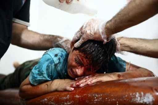 Criança ferida recebe atendimento em Douma após ataque aéreo. Foto: Abd Doumany/AFP