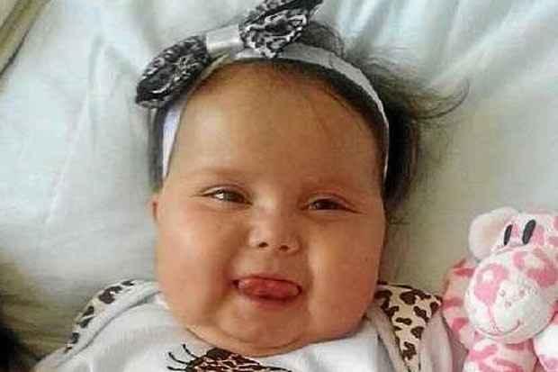 A pequena Sofia, de 1 ano e 8 meses, se recuperava bem da cirurgia, mas teve uma piora e não resistiu. Foto: Facebook/Reprodução
