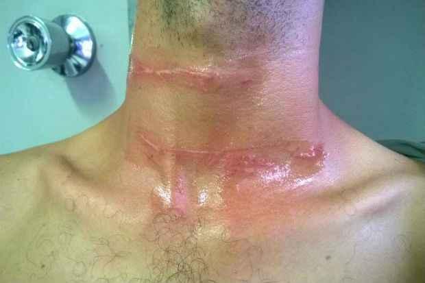 Motociclista de 31 anos foi atingido na altura do pescoço. Foto: Reprodução/ Facebook