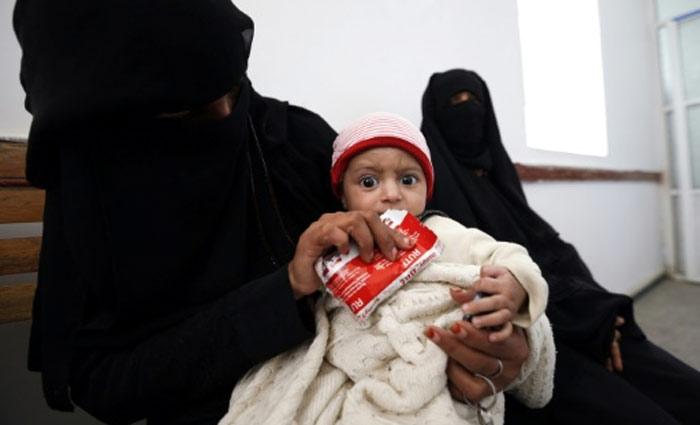 Criança do Iêmem é alimentada em Bani Hawat, no dia 9 de janeiro de 2017. Foto: Mohammed Huwais/AFP/Arquivos