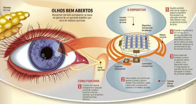 Detalhe de como funciona o dispositivo. Foto: Correio Braziliense/Reprodução