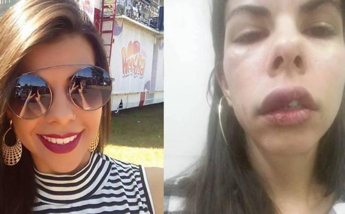 Resultado de imagem para Mulheres relatam agressão na web