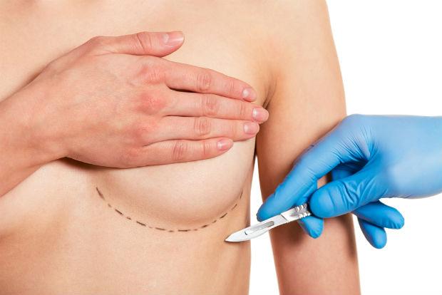 Segundo a Sociedade Internacional de Cirurgia Plástica e Estética, o Brasil é o segundo país a realizar mais procedimentos anualmente. Foto: Reprodução/Internet