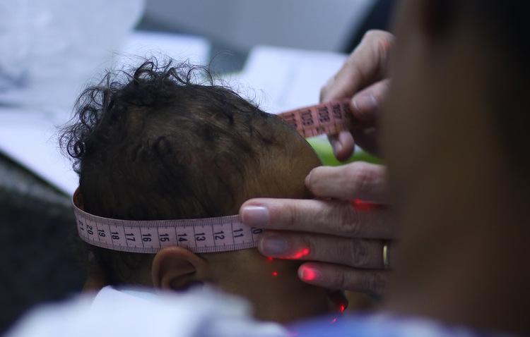 Um conjunto de alterações genéticas é responsável por aumentar a suscetibilidade de alguns bebês às consequências neurológicas da infecção (Marlon Diego / Esp. DP)