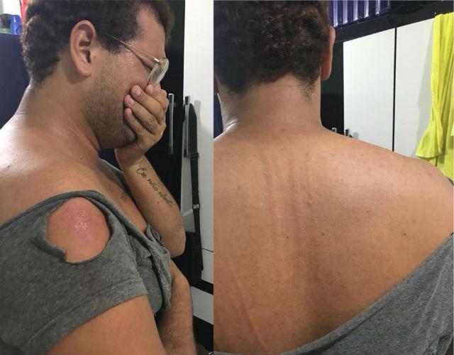 Youtuber postou fotos para denunciar a violência sofrida. Foto: Facebook/Reprodução