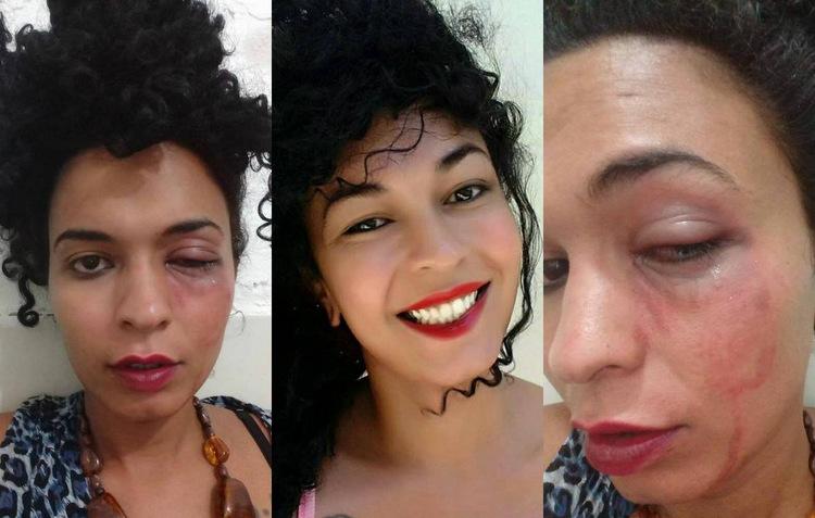 Estudante do Vestibular Solidário da UFPE é agredida dentro do campus após festa. Foto: Reprodução / Facebook
