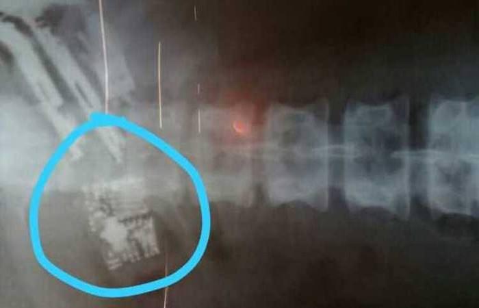 Por meio de raio-X foi possível constatar a presença dos aparelhos. Foto: Reprodução