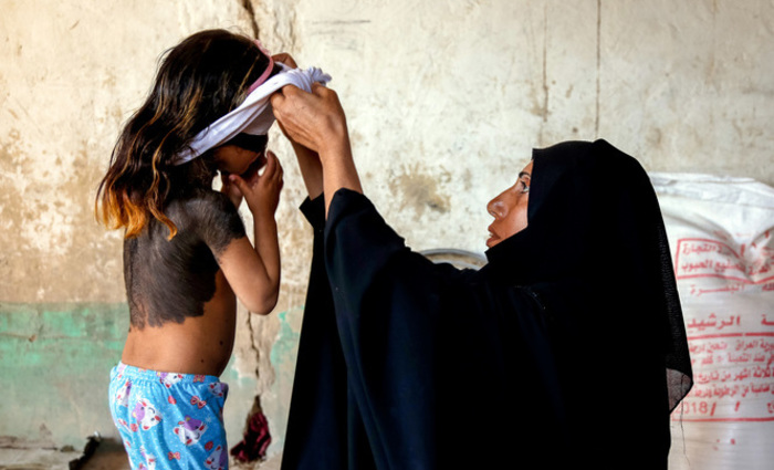 Foto: Haidar HAMDANI / AFP