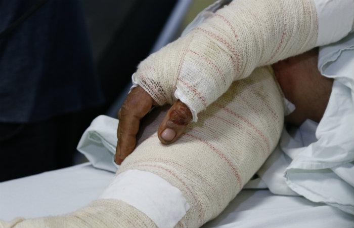 Crianças são as maiores vítimas. Geralmente queimam as mãos e as pernas. Foto: Marlon Diego/Esp DP