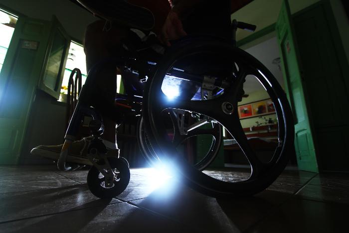 De cada 10 vítimas, uma sofre mutilação. Nordeste é a região com mais indenizados por acidentes com motos. Crédito: Peu Ricardo/DP (Crédito: Peu Ricardo/DP)