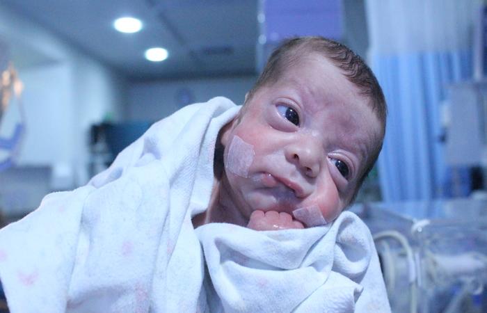 O trabalho foi feito com base nas imagens cerebrais de 223 recém-nascidos. Foto: Samuel Calado/Esp.DP